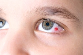 Лопнула судина в оці: причини і методи лікування