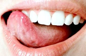 Чому виникає жовтий наліт на язику?
