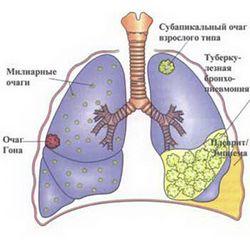 Туберкульоз. Харчування при туберкульозі