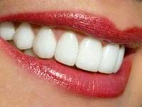 Чим відбілити зуби