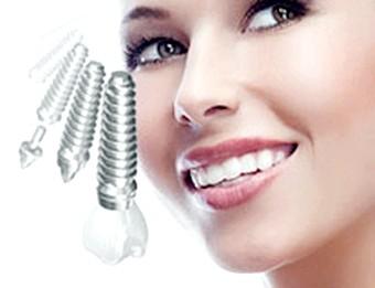 Зубні імплантанти - вибираємо підходящий варіант